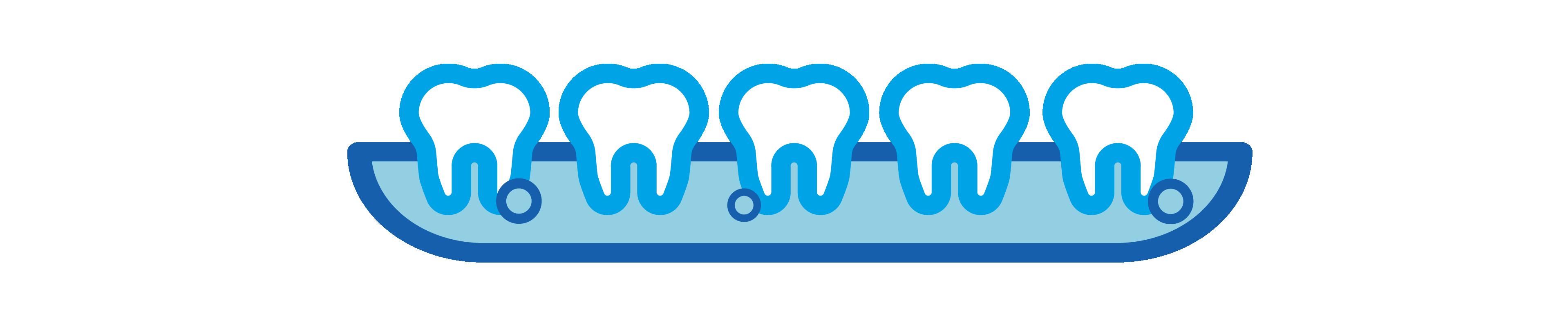 DentalEmergency_Blog_gaphics-06